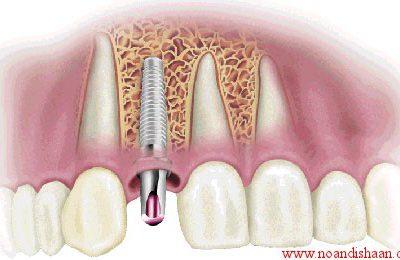 ايمپلنت دنداني