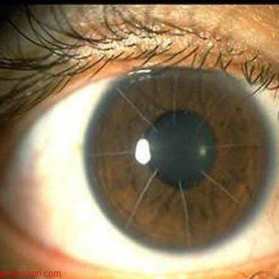 پروتز بینایی